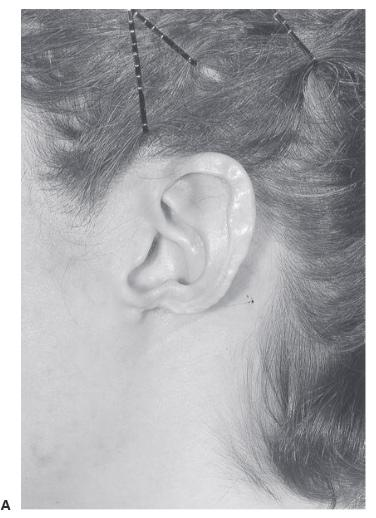 Earlobe reconstruction 1