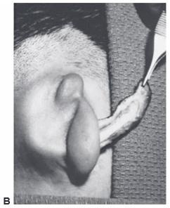 Insertion of the ear framework 2