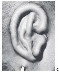 Insertion of the ear framework 3