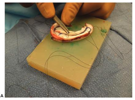 Construction of the cartilage A